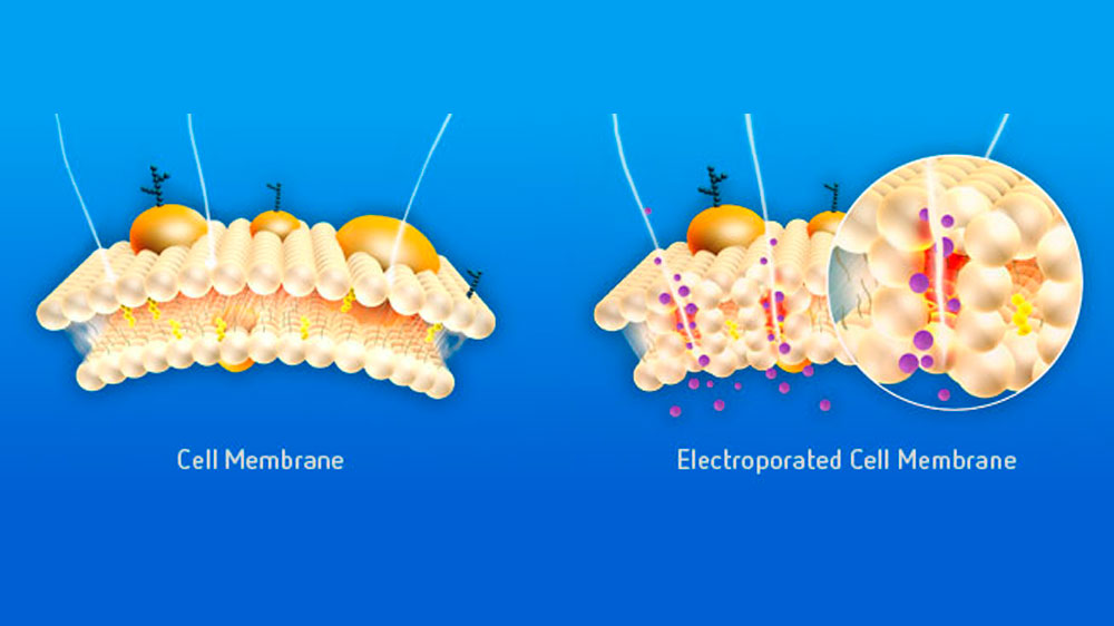 Tech In vivo electroporation